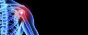 AMK essen kinesie schouder therapie na trauma